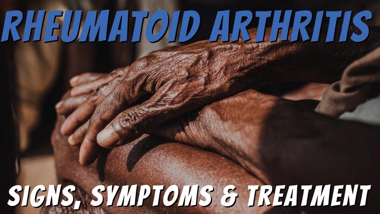 a csípőkészítmények artrózisa)