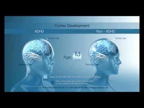 The ADHD brain