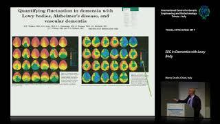 M. Onofrj - EEG in Dementia with Lewy Body