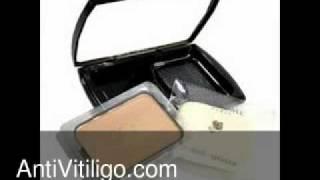 Lancom Vitiligo Makeup Thumbnail