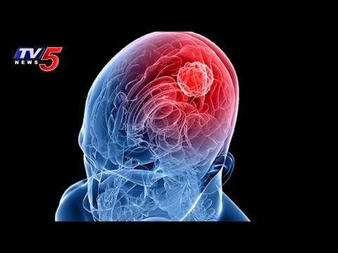 Treatments For Head Injuries, Brain Tumor and Brain Hemorrhage | Health File | TV5 News