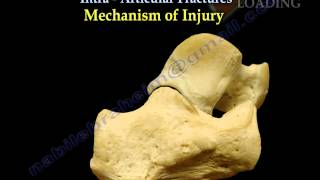 Calcaneal IntraArticular Fractures Essex Lopresti - Everything You Need To Know - Dr. Nabil Ebraheim