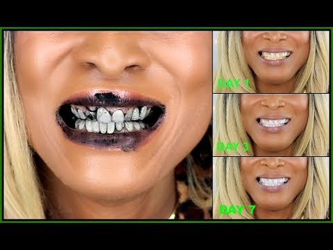 I Use Charcoal On My Teeth For Seven Days How To Whiten Teeth With