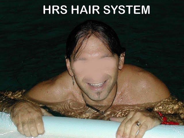 Incredibile protesi ultra traspirante riposizionabile HRS - La tua protesi di capelli può farlo?