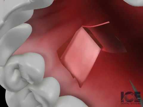 Britten Perio Shares Connective Tissue Graft Animation