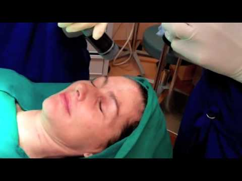 FX CO2 Laser Resurfacing of the Face and Neck