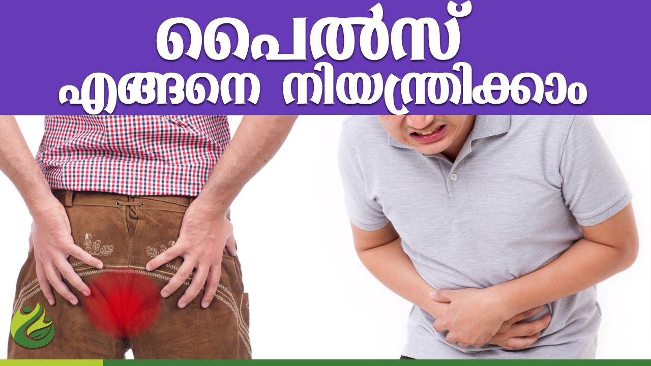 The cause of hemorrhoids in women and men, the prevention of disease