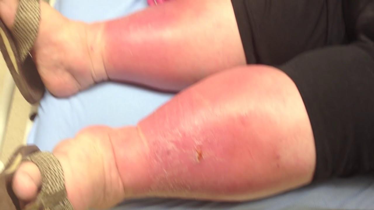 diabetic leg ulcers #10