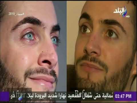 63643f971 د.أسامة النحراوى يوضح تفاصيل عملية تغيير لون العين.. ويستعرض حالة من ...