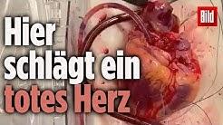 """Ärzte transplantieren erstmals ein """"totes"""" Herz"""