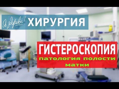 Внутриматочные синехии (сращения), лечение, причины