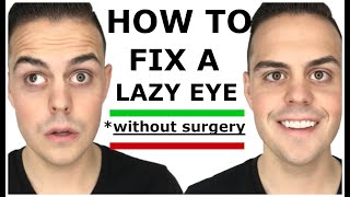 Best Lazy Eye Story & How I Fixed My Lazy Eye Naturally