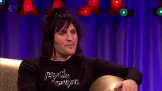 Noel Fielding on Alan Carr: Chatty Man 10/10/14