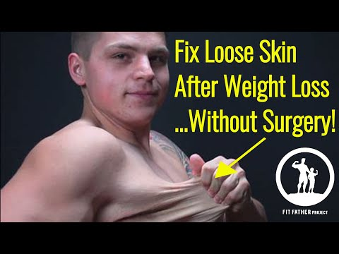 How To Fix Loose Skin After Weight Loss Men Without Surgery (5 Steps)