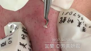20180709清粉刺工作影片,亞芳美妍館,宜蘭羅東