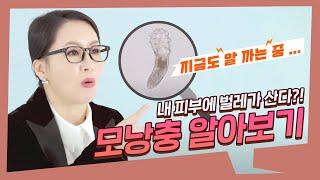 [모공관리특집] 내 피부가 간지러운 이유는 벌레 때문?…