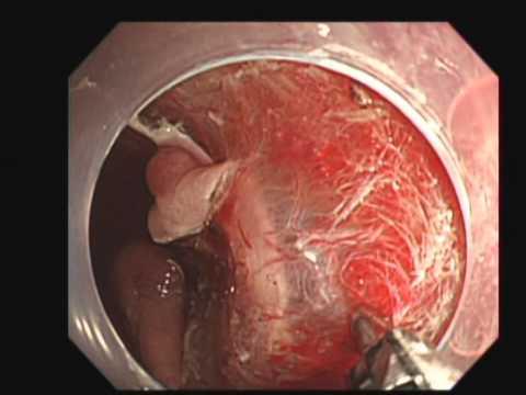 Основные методики проведения колоректальной эндоскопической подслизистой диссекции ESD