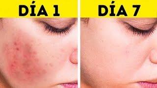 Esto eliminará las manchas de tu rostro en solo 3 noches