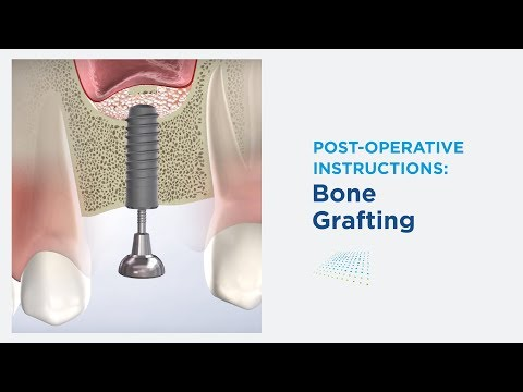 Post-Op: Bone Grafting in Modesto CA | Greater Modesto Dental Implant & Oral Surgery Center