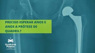 Preciso esperar anos para fazer artroplastia de quadril (prótese de quadril)?Dr Gustavo Poleto