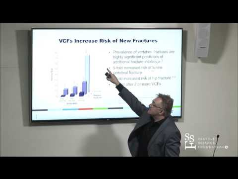 VCF and Augmentation by James Carlisle, MD