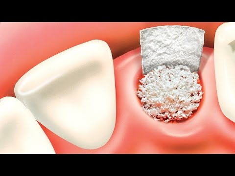 Bone grafting procedure