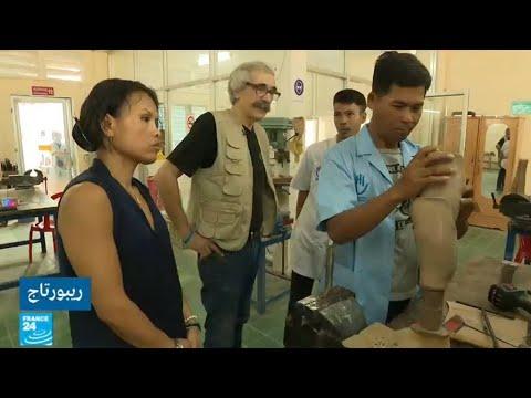 آلاف الأعضاء الاصطناعية سنويا من منظمة -أونديكاب إنترناشيونال-  - 14:23-2018 / 5 / 22