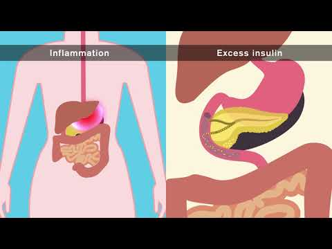 How does obesity cause cancer?