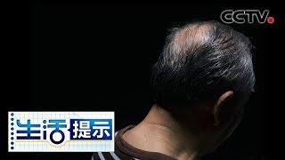 《生活提示》 20190731 植发也是手术需谨慎| CCTV