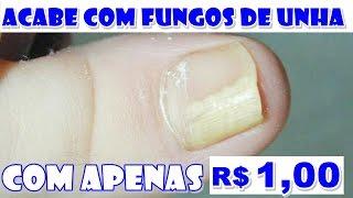 COMO MATAR MICOSE NAS UNHAS COM APENAS R$ 1,00 REAL – Fran Adorno