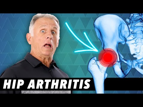 Top 3 Signs Your Hip Pain Is From Arthritis-Tests you can do at home.