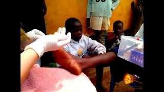 Черви Dudu в ножках детей