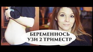 БЕРЕМЕННОСТЬ 16-20 НЕДЕЛЬ- Senya Miro