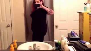 Post op Gastric Bypass weight loss full body shot!!