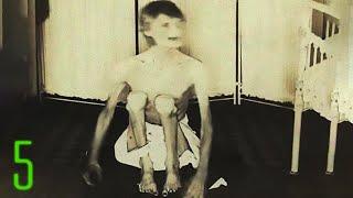 5 Nightmare Fuel Photos from Insane Asylums