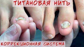 Установка титановой нити Коррекция вросшего ногтя