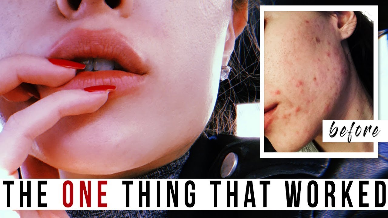 clearing hormonal acne naturally without birth control | clear skin
