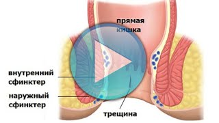 видео Лечение трещины заднего прохода без операции