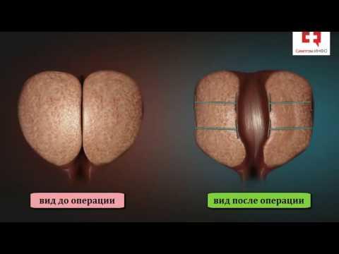 Аденома простаты – лечение симптомы и признаки аденомы