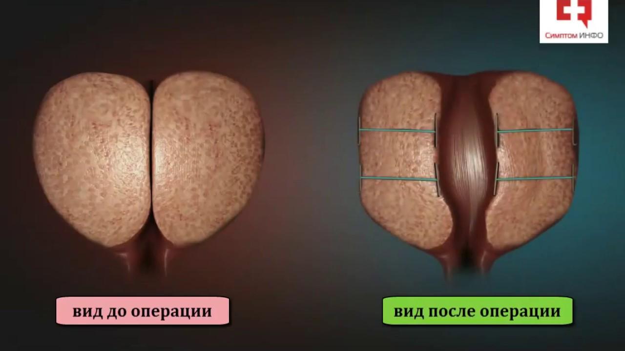отличное средство от простатита