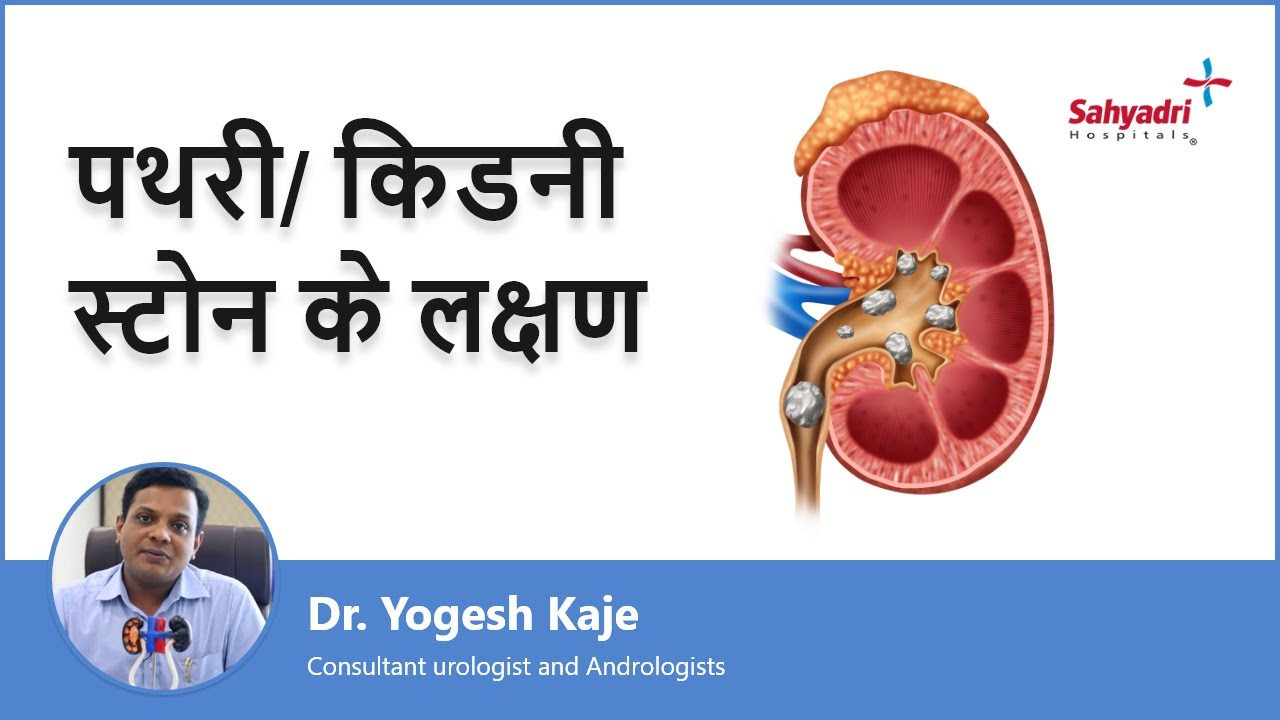 पथरी/ किडनी स्टोन के लक्षण | Signs And Symptoms Of Kidney Stone in Hindi |Dr. Yogesh Kaje | Sahyadri