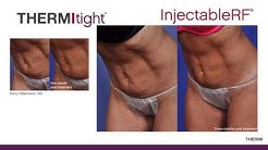 ThermiTight RF Skin Tightening Before and After Results Florida