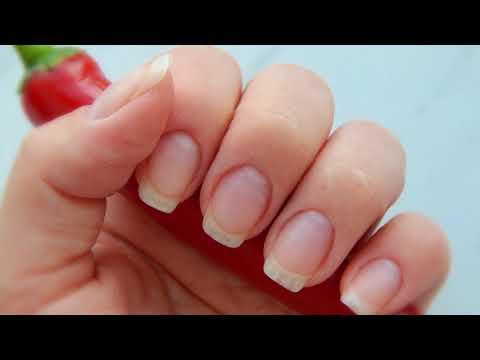 0 - Відшарування нігтя на руці і нозі — причини відшарування, лікування