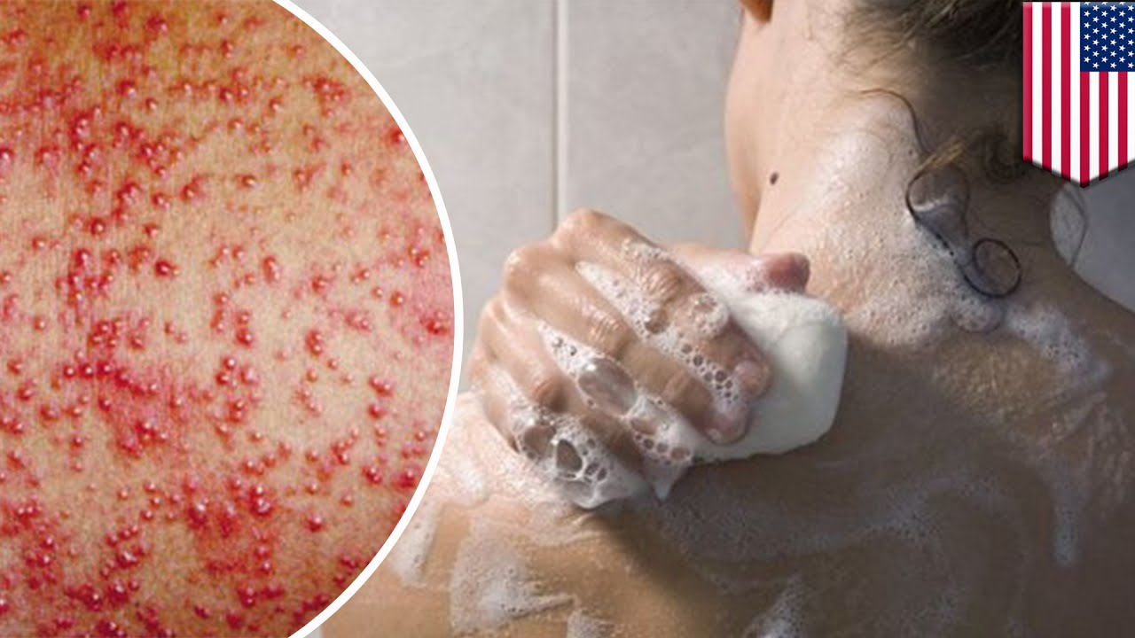 Skin allergy: Red itchy rashes? It might be preservatives in your bath  products - TomoNews