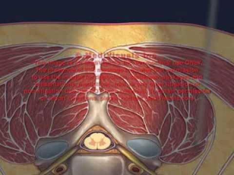 Cervical Interlaminar Epidural Injection Animation