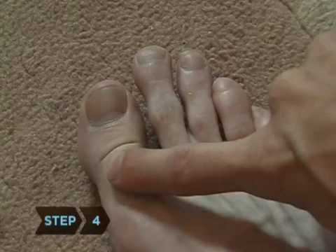 How to Know If Your Toe Is Broken