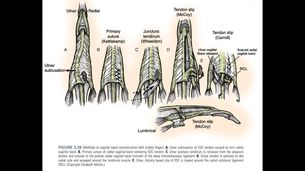 Sagittal Band Rupture Surgery