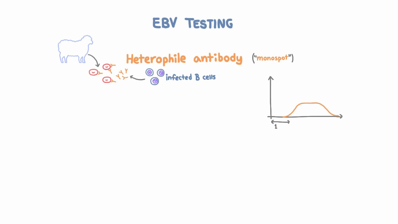 Epstein Barr Virus (EBV) Diagnosis and Testing
