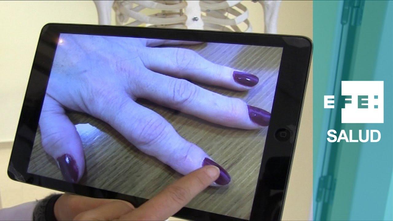 artritis en manos prevención de diabetes