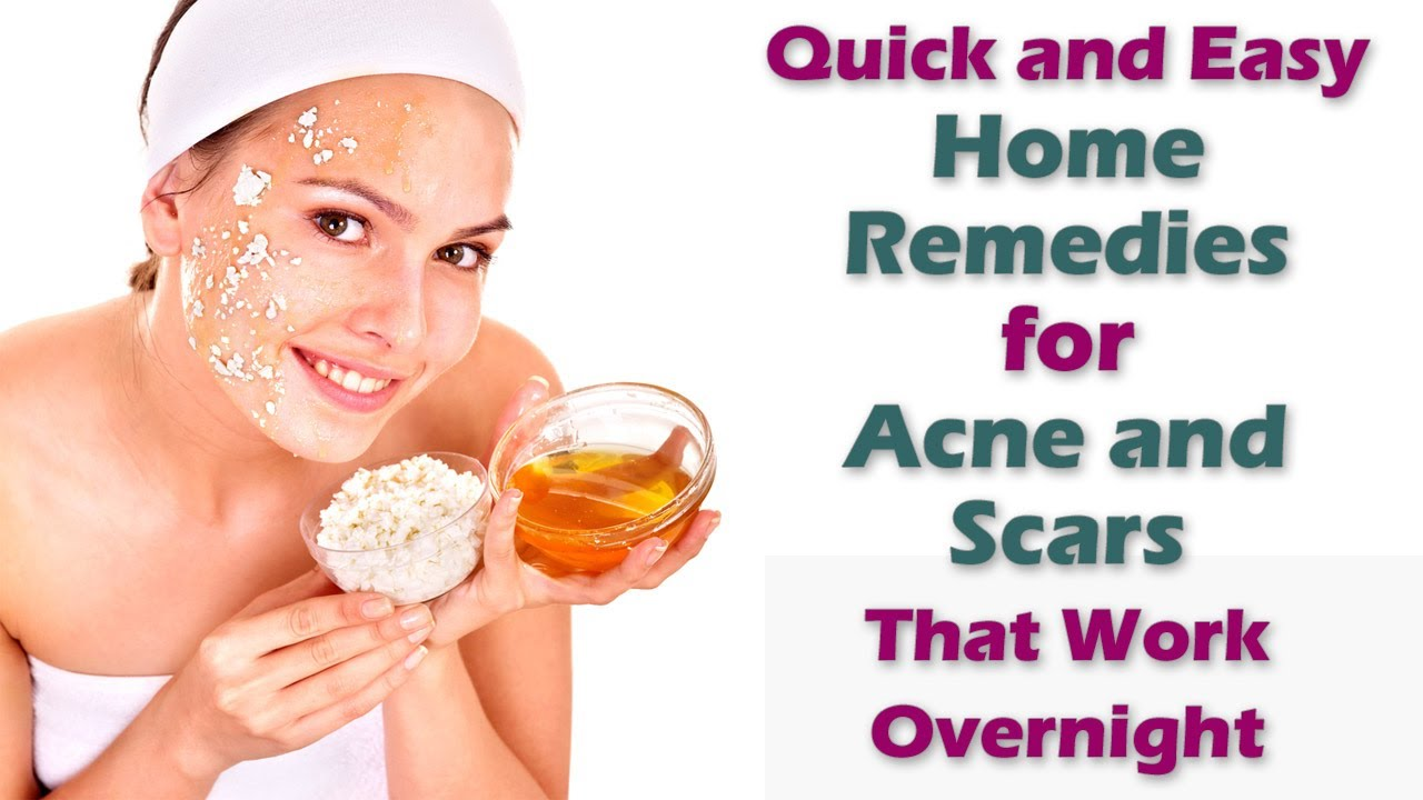 Home Remedies For Acne Scars Overnight